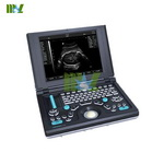 Laptop vet ultrasound scanner | Equine ultrasound scanner - MSLVU06