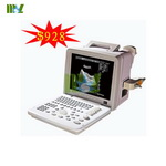 Portable ultrasound machine price | B-ultrasound scanner - MSLPU01
