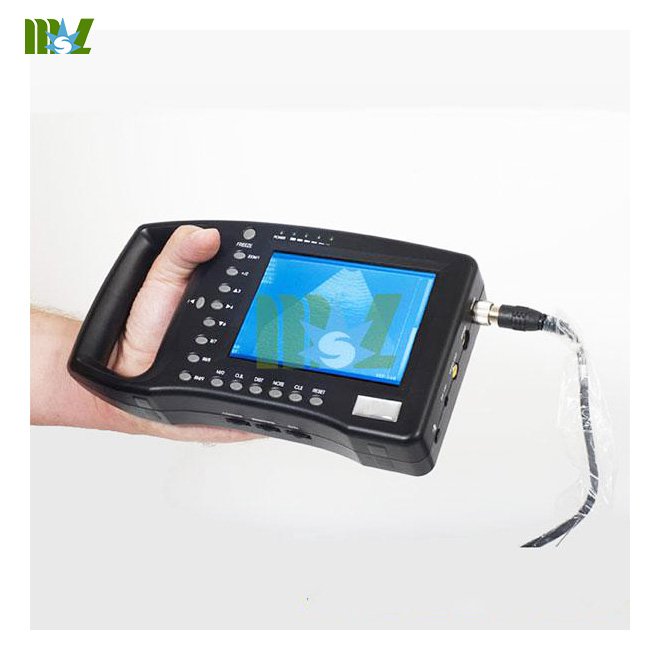 handheld ultrasound scanner