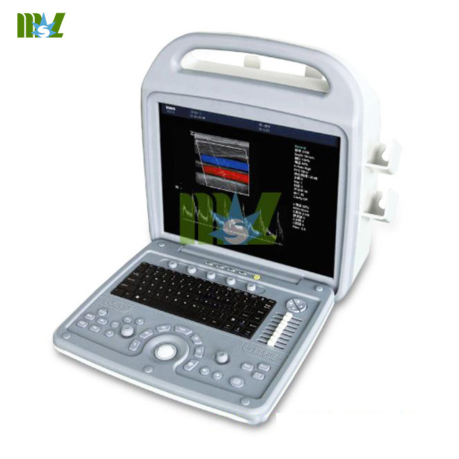 echocardiography machine price