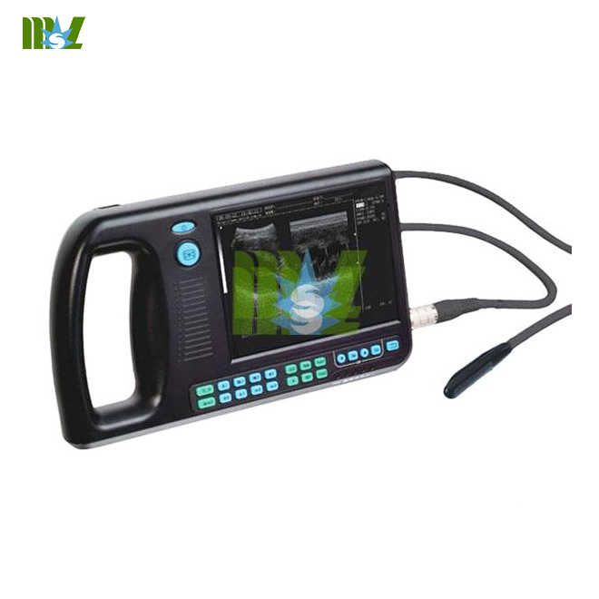 Portable medical ultrasound devices for sale