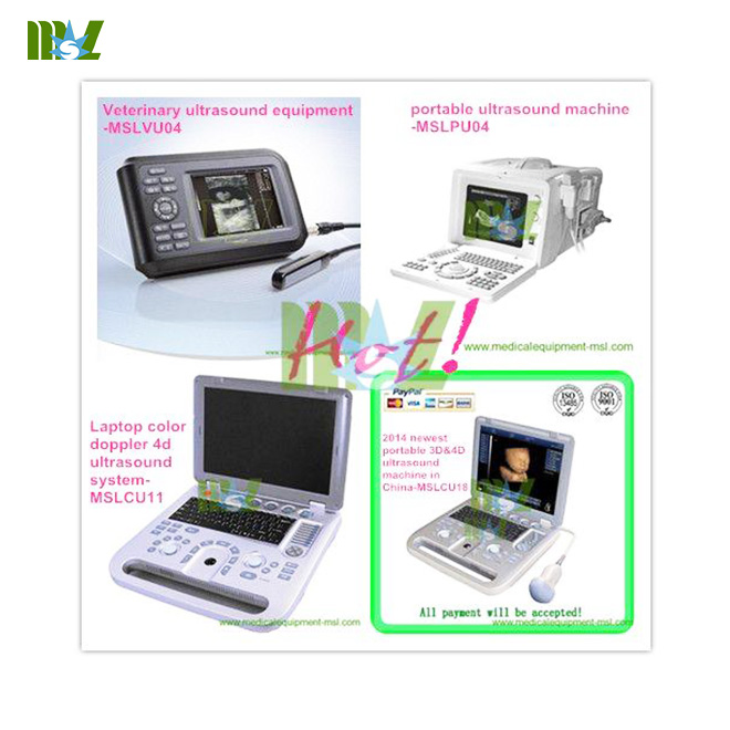 2014 newest portable 3D&4D ultrasound machine
