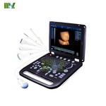 2014 newest portable 3D&4D ultrasound machine in China-MSLCU18