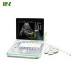 LED screen laptop ultrasound machine & portable ultrasound scanner-MSLPU24