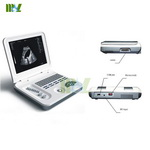 China Factory Direct Sale medical portable notebook laptop ultrasound machine-MSLPU26