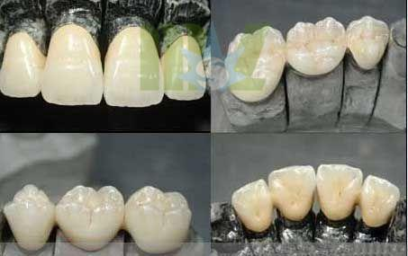 Cobalt-chromium porcelain teeth which harm