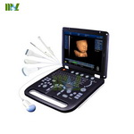 2015 newest portable 3D&4D ultrasound machine in China-MSLCU18