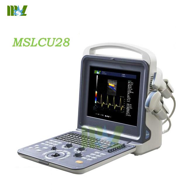 Portable 4d Color Doppler Ultrasound Diagnostic Imaging
