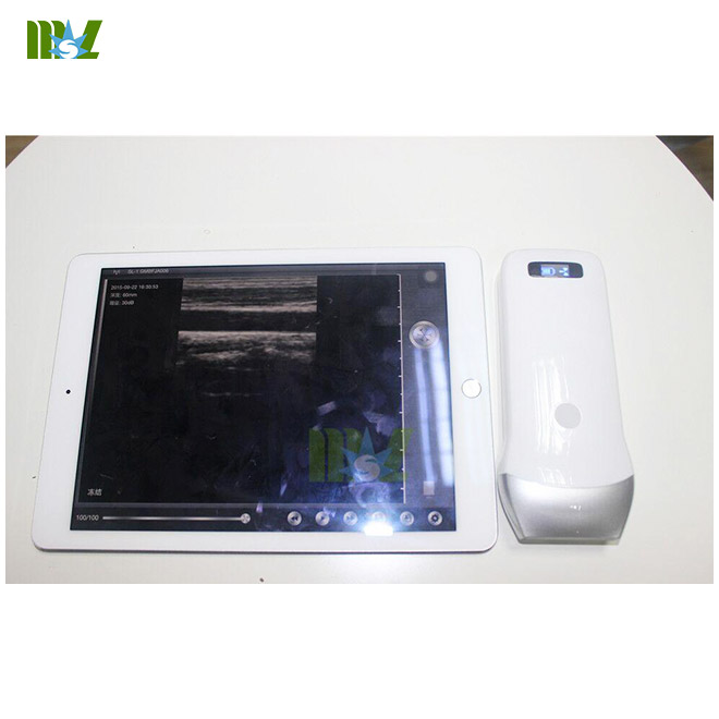 China Advanced Wireless Ultrasound Transducer Manufacturer