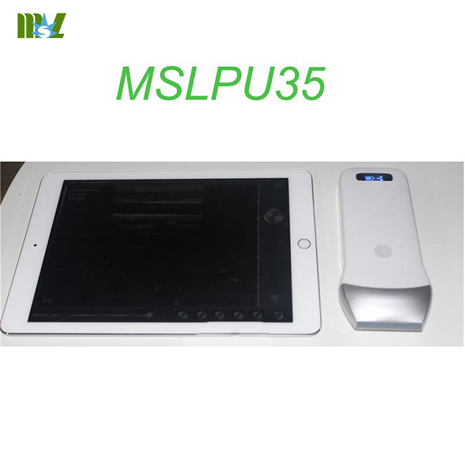 MSL wireless ultrasound Scan linear Probe MSLPU35