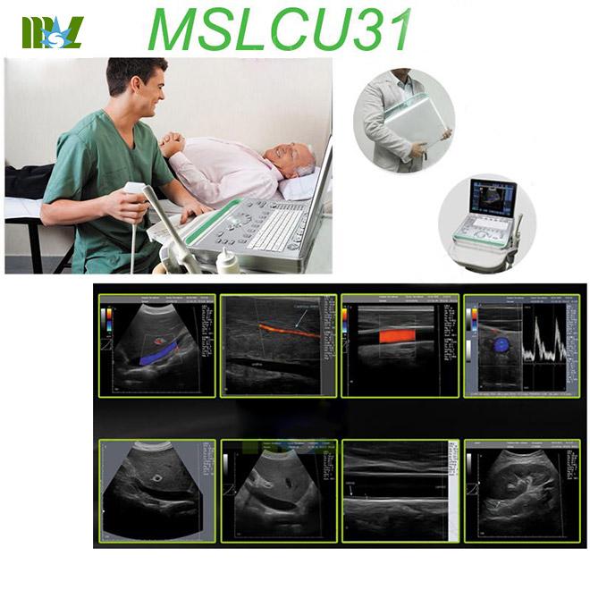 portable color doppler ultrasound MSLCU31