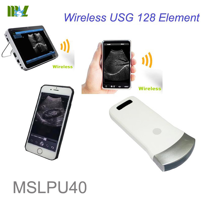 ultrasound machine for iphone