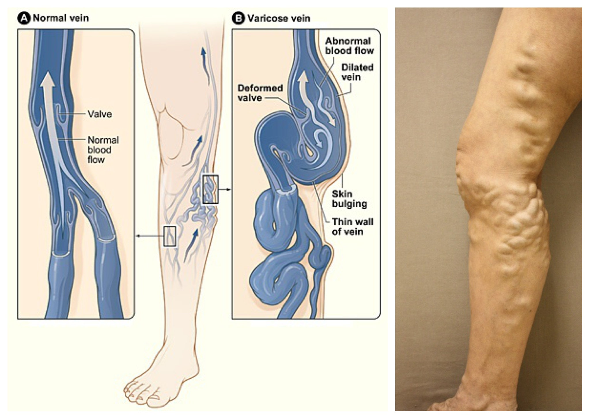 Ten home remedies tips for varicose veins