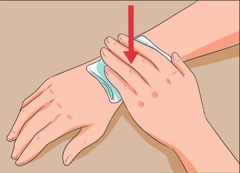 How to speed up healing bruises